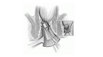 Лечение на хемороиди в Бургас-Infocall.bg