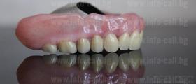 Безметални зъбни конструкции във Варна