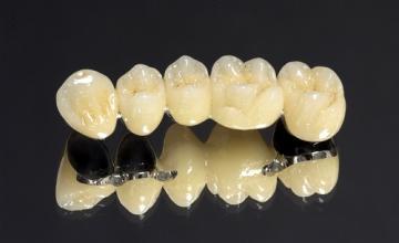 Зъбни коронки и мостове във Варна
