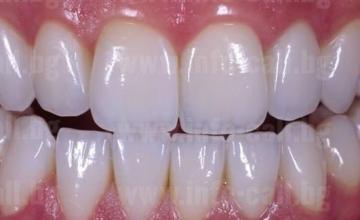 Зъбни протези във Варна - Одесос