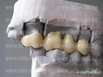 Зъбни протези във Варна - СМТЛ Максим Симов