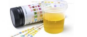Анализ на урина в Търговище