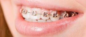 Детска ортодонтия в София-Зона Б5