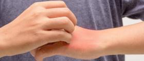 Диагностика и лечение на алергични заболявания в София-Център