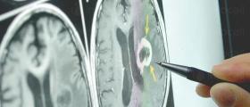 Диагностика и лечение на нервни болести в Бургас