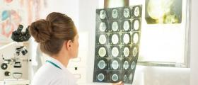 Диагностика и лечение на неврологични заболявания в Ямбол - Доктор Павлина Георгиева