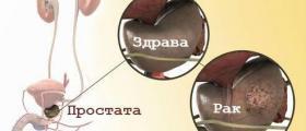 Диагностика и лечение на рак на простатата в София