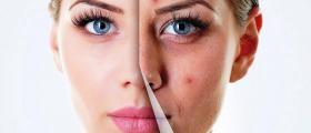 Диагностика на кожни и венерически болести във Варна - Доктор Пенка Друмева