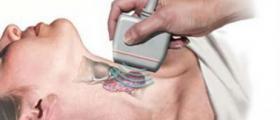 Ехография на щитовидна жлеза във Варна