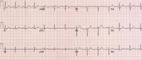 Електрокардиограма в Силистра