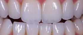 Естетична стоматология във Варна