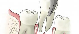 Хирургична стоматология в Ямбол