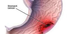 Хирургия на стомаха