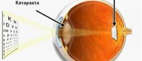 Хирургия при катаракта в София-Банишора