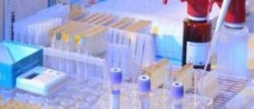 Имунологични изследвания във Велико Търново