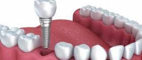 Избелване на зъби в Димитровград