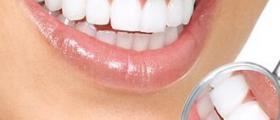Избелване на зъби в Пловдив