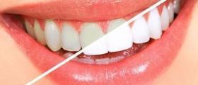 Избелване на зъби в Сливен
