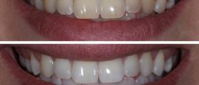 Избелване на зъби в София-Красно село