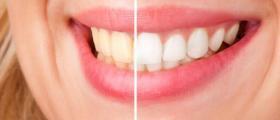 Избелване на зъби в София-Лозенец