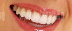 Избелване на зъби в София-Подуяне