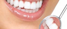Избелване на зъби във Враца