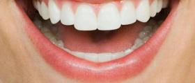 Избелване зъби