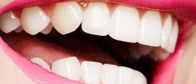 Избелване зъби в Горна Оряховица