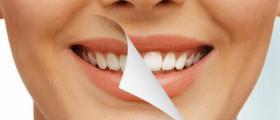 Избелване зъби в Русе