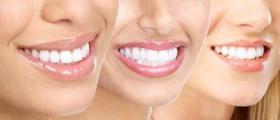 Избелване зъби в Силистра