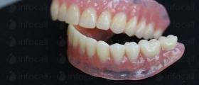 Изработка на зъбни протези в Русе и София-Дианабад