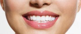 Изработка зъбни конструкции в Русе и София-Дианабад