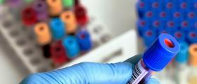 Лабораторни изследвания във Варна