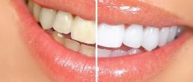 Лазерно избелване на зъби в София-Лагера