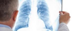 Лечение белодробни заболявания в Русе