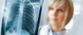 Лечение на белодробни болести в Смолян