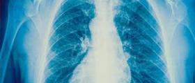 Лечение на белодробни заболявания във Варна