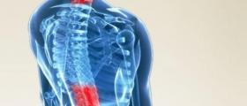 Лечение на гръбначен стълб в София-Младост
