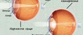 Лечение на катаракта в Благоевград