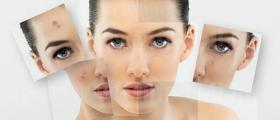 Лечение на кожни и венерически болести в Бургас