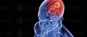 Лечение на мозъчни и гръбначи тумори във Варна