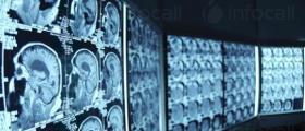 Лечение на мозъчни тумори в София - Доц доктор Румен Попов