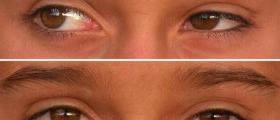 Лечение на очни болести в София-Младост 3