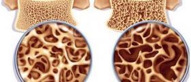 Лечение на остеопороза в София-Горна баня