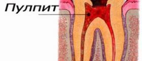 Лечение на периодонтит в Кърджали