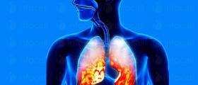 Лечение на пневмония в Русе