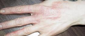 Лечение на псориазис във Варна