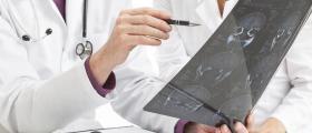 Лечение неврологични заболявания в Кърджали - Доктор Пенка Чакърова