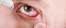 Лечение очни болести в Мадан