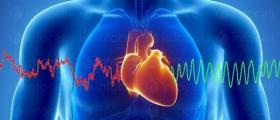 Лечение сърдечно-съдови заболявания в Пловдив